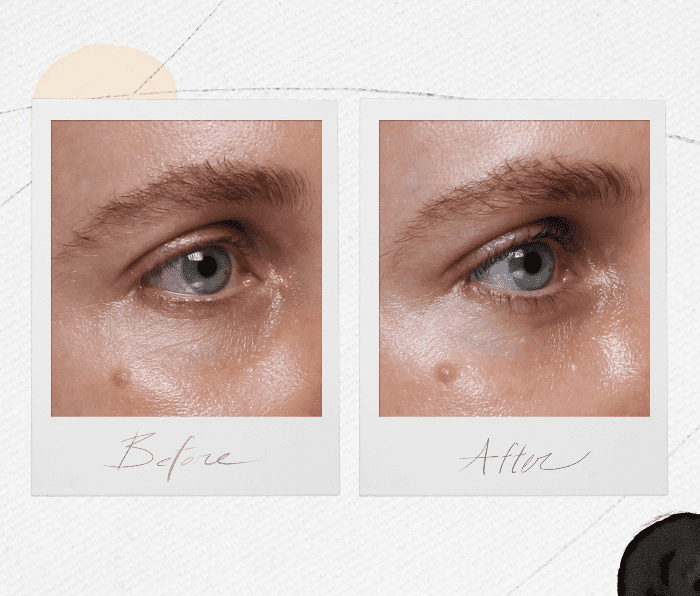 under eye fillers—before and after