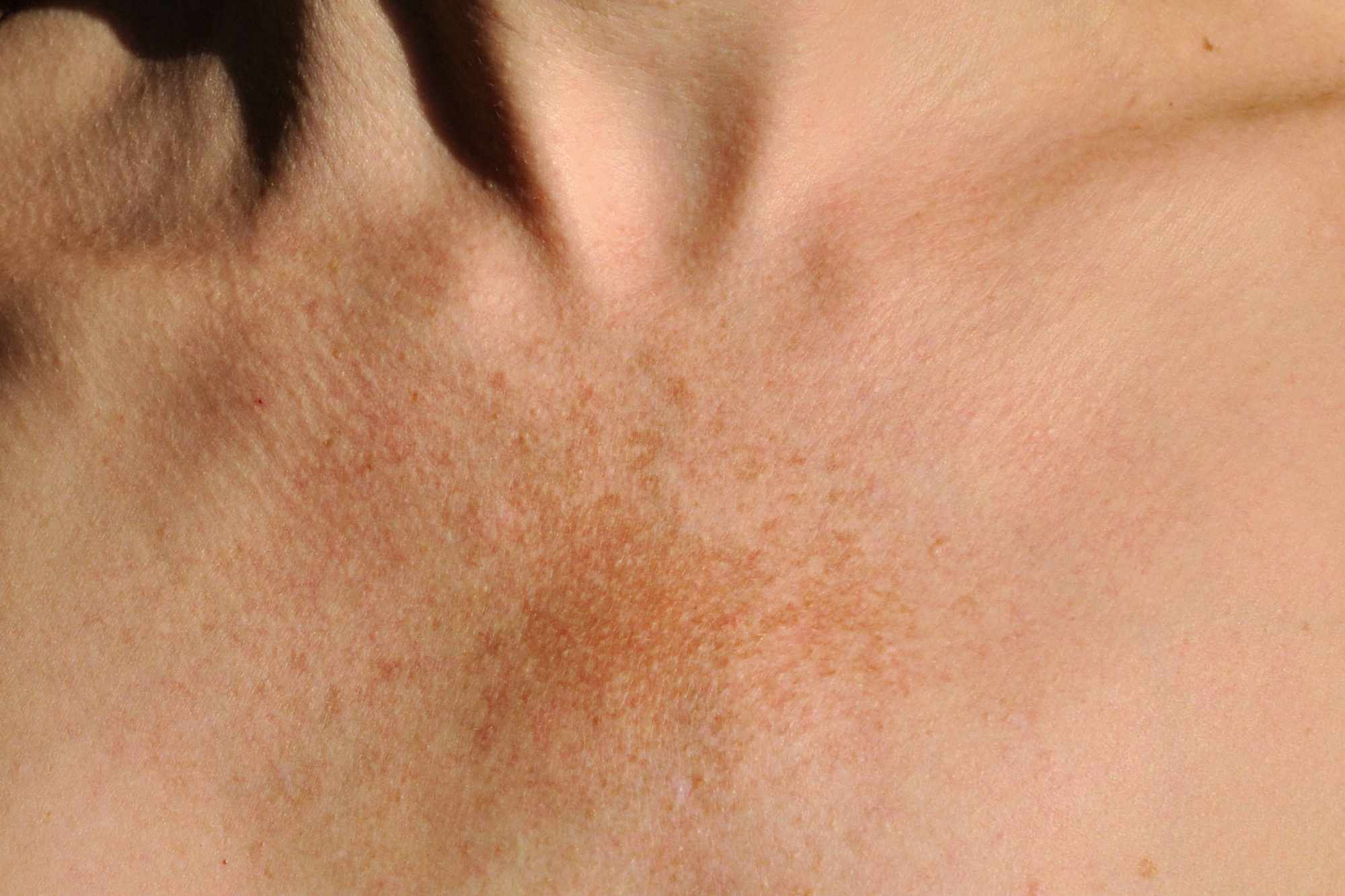 chest with melasma sunspots