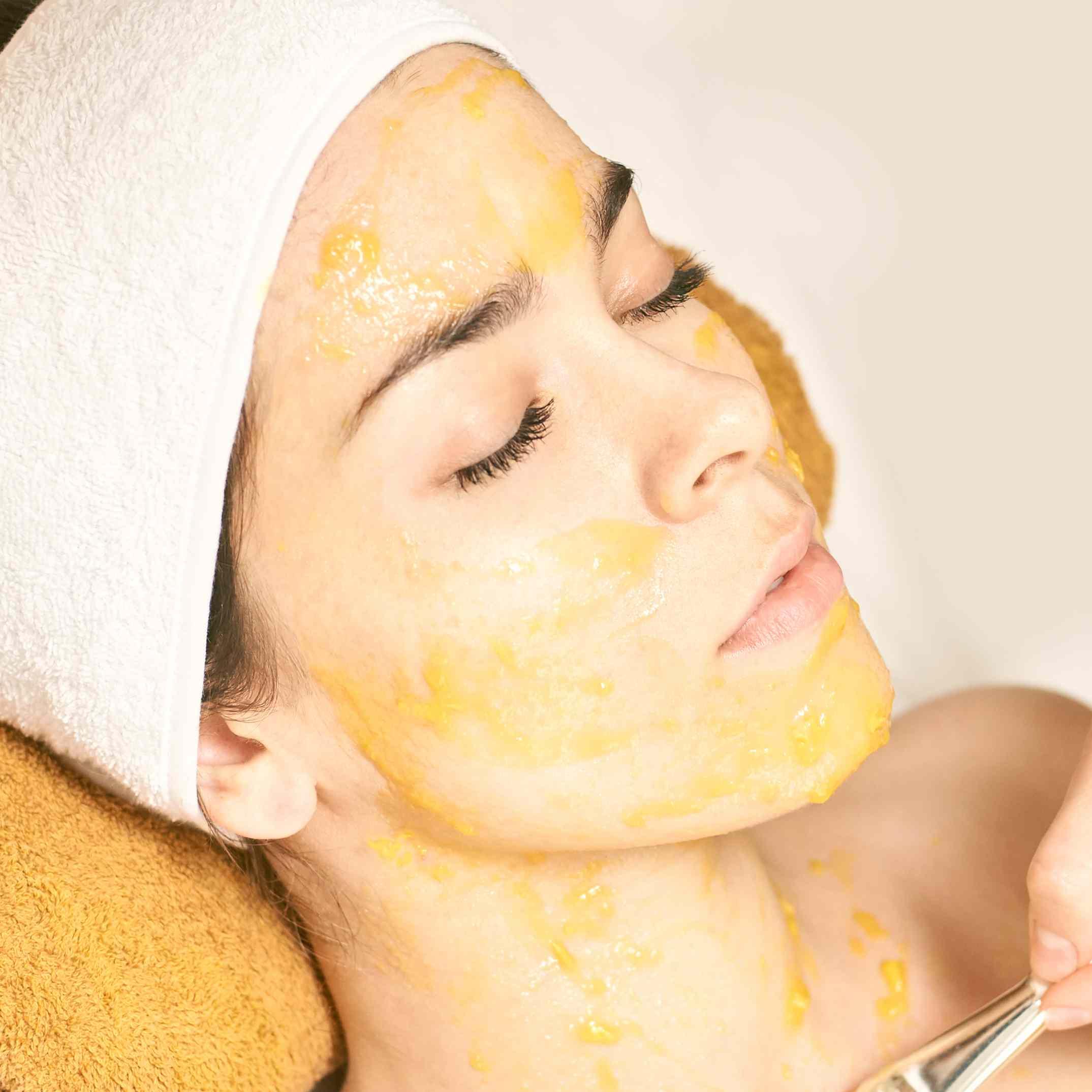 woman getting chemical peel