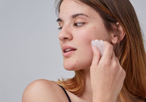young woman with acne using stone on face